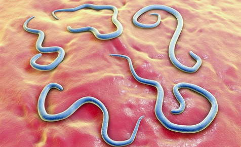 Image of roundworms