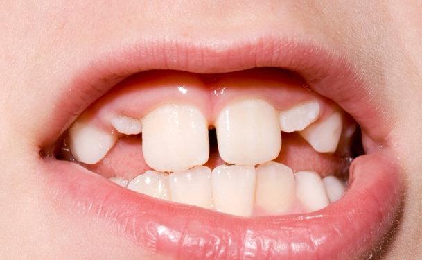 Straighten Overlapping Teeth
