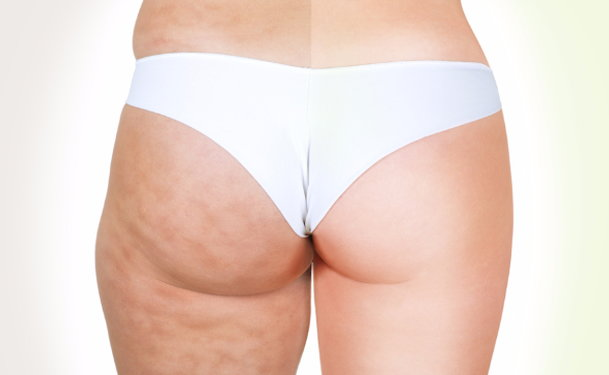 Potential Risks and Complications of Zerona Laser Liposuction