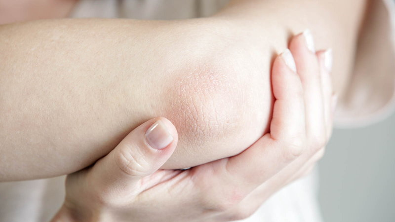 dry skin on elbow