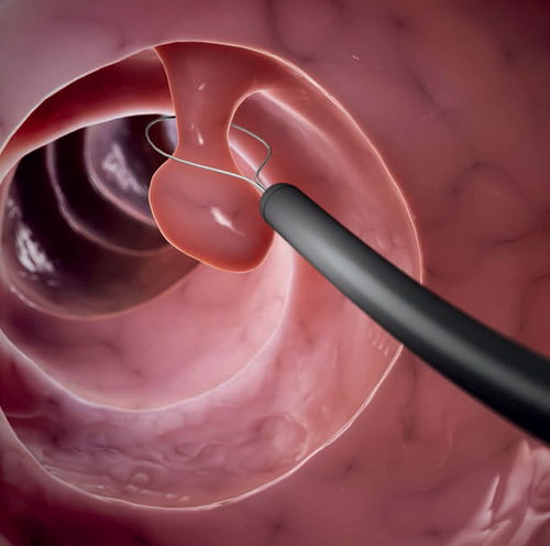 How are polyps removed?