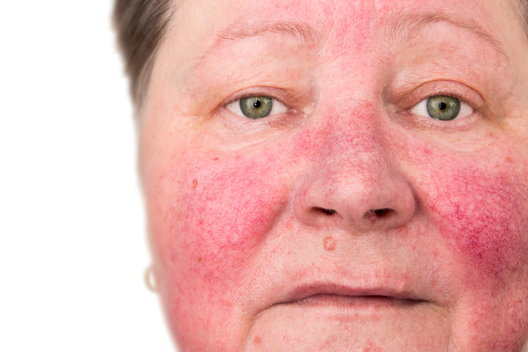 woman with hives after excessive alcohol consumption