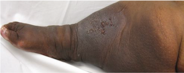 Swollen leg with coexistent chronic venous insufficiency