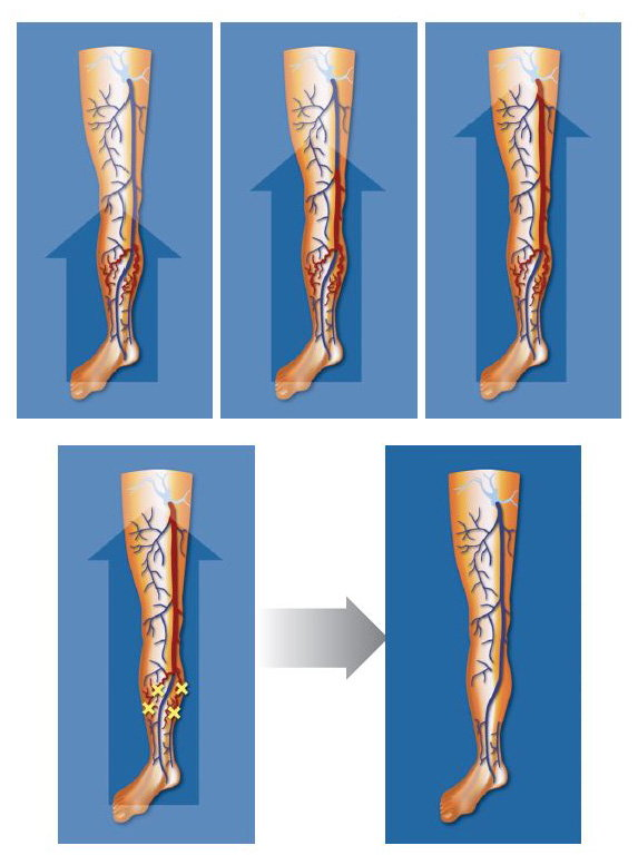 Figure 1 diagram of legs before and after ASVAL