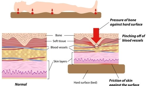 a description of decubitus ulcers also known as bedsores Bedsores, also known as pressure ulcers or decubitus ulcers, are serious and  painful wounds that get progressively worse without prompt diagnosis and.